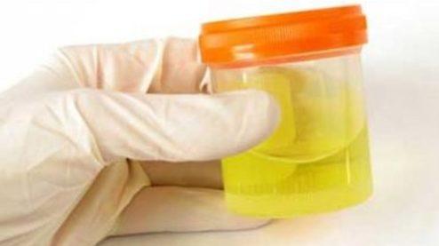 สยอง!! เพจดังเผยรูปแบคทีเรียและเชื้อโรค ในปัสสาวะของคน
