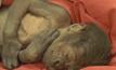 ผ่าคลอดลูกลิงเกิดใหม่ในอังกฤษ