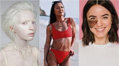 7 ผู้หญิงสตรองเผชิญกับโรคหายาก พลิกปมดอยเป็นความแกร่ง ส่งต่อแรงบันดาลใจ