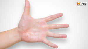 เหงื่อออกมือเยอะ ไม่ได้แปลว่าเป็นโรคหัวใจ แต่มันเกิดจาก 2 สาเหตุนี้!!