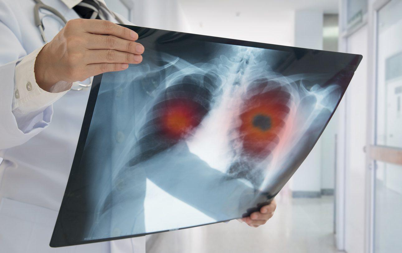 10 โรคมะเร็ง รักษาฟรี ใช้สิทธิประกันสังคมได้ และนี่คือสาเหตุของโรคร้าย