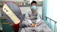 ชายชาวจีนต้องขึ้นเขียงผ่าตัดด่วน เพราะเคยกลืน ไม้จิ้มฟัน ลงคอไปเมื่อหลายปีก่อน!!