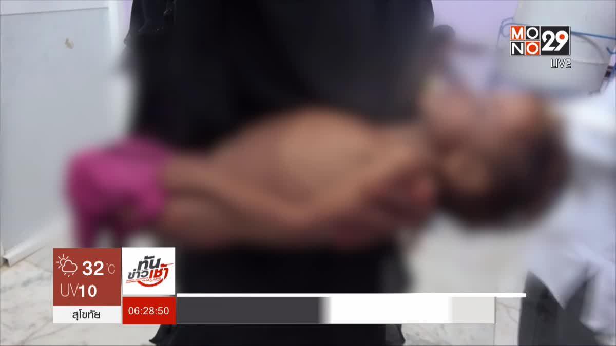 เด็กเยเมนเผชิญความอดอยากกว่า 5 ล้านคน