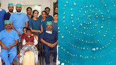 ฟันเยอะมาก! เด็กน้อยจากอินเดีย ผ่าตัดเอาฟันเกินออก กว่า 526 ซี่