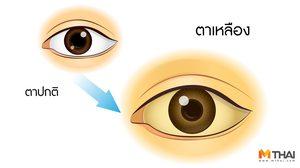 รู้ยัง? ตาเหลือง ตัวเหลือง ไม่ได้เป็นแค่ดีซ่าน แต่เป็นโรคอื่นได้อีกเพียบ!!