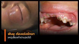 อีกแล้ว เด็ก 3 ขวบ ฟันผุรุนแรง หวิดทำตาบอด
