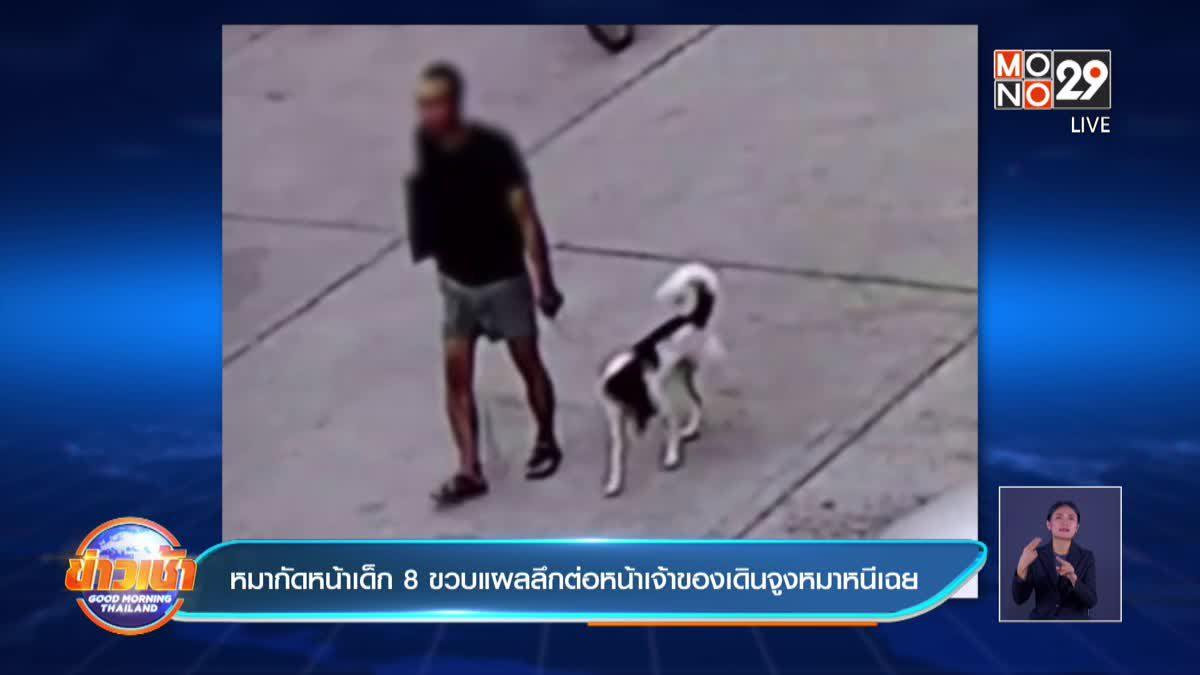 หมากัดหน้าเด็ก 8 ขวบแผลลึกต่อหน้าเจ้าของเดินจูงหมาหนีเฉย