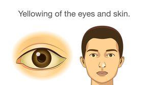 อาการของโรค ไวรัสตับอักเสบบี และแนวทางปฎิบัติเมื่อเป็นโรค