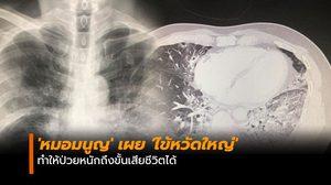 'หมอมนูญ' เผย 'ไข้หวัดใหญ่' ทำให้ป่วยหนักถึงขั้นเสียชีวิตได้
