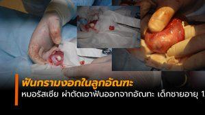 ตะลึง! แพทย์รัสเซียผ่าตัดฟันกรามงอกในอัณฑะ เด็กชายอายุ 13