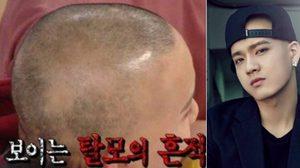 พีเนียล BTOB ไอดอลเกาหลีที่เผชิญโรคผมร่วงลุกลามกว่า 5 ปี!