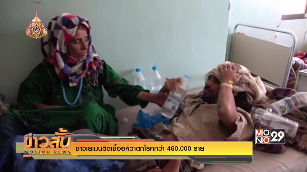 ชาวเยเมนติดเชื้ออหิวาตกโรคกว่า 460,000 ราย