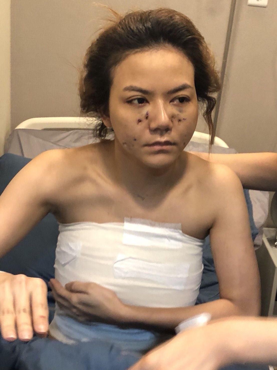 จ๊ะ อาร์สยาม บินศัลยกรรมที่เกาหลี