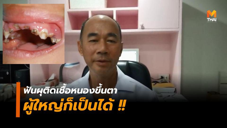 แพทย์เตือนเคสฟันผุติดเชื้อหนองขึ้นตา เกิดขึ้นได้ทั้งเด็กและ 'ผู้ใหญ่'