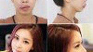 คิมฮีอึน สาวเกาหลี ศัลยกรรม Let me in คนล่าสุด…สวยไปมั้ยเนี้ยยย