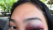 สาวโร่แจ้งความอ้างถูก เบน ชลาทิศ ทำร้าย ระหว่างไปนั่งดื่มที่ร้านอาหารย่านทองหล่อ