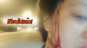 สาวใจเด็ด โพสต์เตือนภัย หลังถูกโจรถีบรถล้ม-ตีหัวเลือดอาบ หวังปล้นเงิน