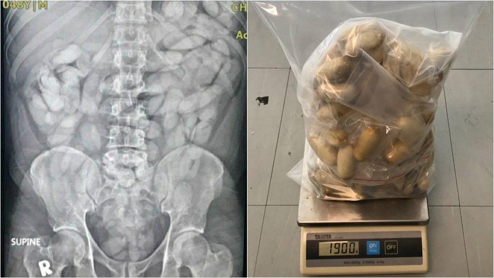 ศุลกากรจับกุมชายชาวเซเนกัล ลักลอบนำเข้าโคเคน โดยการกลืนลงท้อง