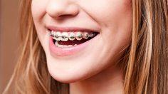 ข้อดี - ข้อเสียของการจัดฟัน - ข้อมูลการดัดฟัน จัดฟัน ก่อนตัดสินใจ