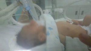 แม่พยายามทุกทาง! วอนช่วยผ่าตัดลูกวัย21วัน ป่วยโรคหัวใจรุนแรง