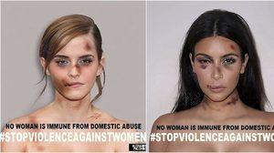 สาวฮอลลีวู้ด เผยภาพ โดนซ้อม จนหน้าน่วม ในโปรเจค ยุติความรุนแรงในผู้หญิง