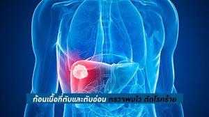 ความรู้เกี่ยวกับโรคตับ ตับอ่อน - อาการของโรค ปัจจัยเสี่ยง การรักษาผ่าตัด