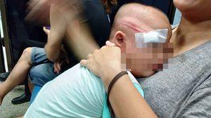 ตำรวจแจงปม อาสาเอากระบองฟาดโดนเด็ก 2 ขวบสลบ จ่อสอบสวนข้อเท็จจริงแล้ว