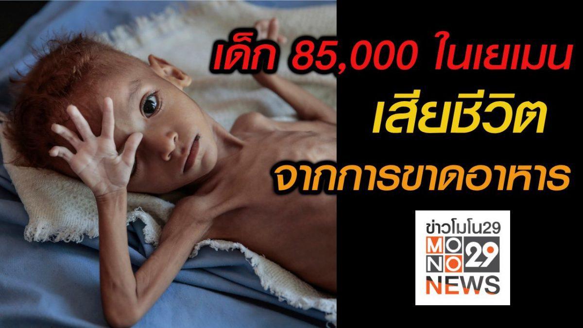 #เรื่องเล่ารอบโลก เด็ก 85,000 ราย เสียชีวิตจากการขาดอาหารในเยเมน