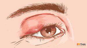 6 วิธีรักษา โรค ตากุ้งยิง ลดอาการปวด บวม