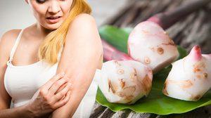 6 วิธีแก้ผื่นคันง่ายๆ รักษาโรคผิวหนัง ด้วยวิธีแบบธรรมชาติ!!