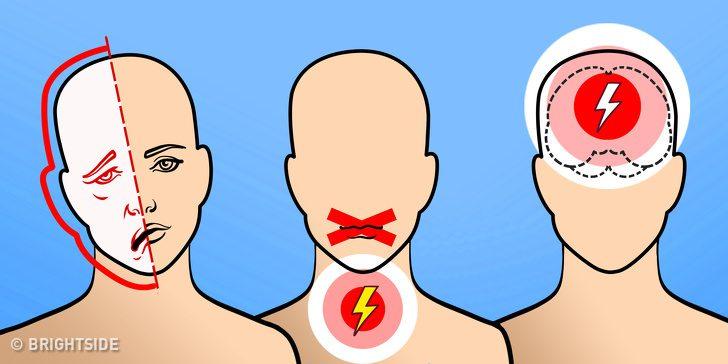 6 สัญญาณ ที่บ่งบอกว่าคุณมีความเสี่ยงเป็น โรคเส้นเลือดในสมอง!!