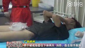 หนุ่มจีน แหวนติดกระปู๋ ทีมแพทย์ใช้เวลากว่าหนึ่งชั่วโมงครึ่งในการตัดเหล็กออก