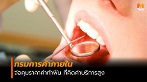 กรมการค้าภายใน เตรียมหารือทันตแพทยสภา คุมราคารักษาฟัน