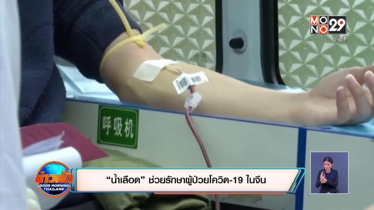 """""""น้ำเลือด"""" ช่วยรักษาผู้ป่วยโควิด-19 ในจีน"""
