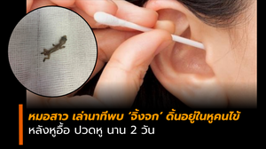 หมอสาว โพสต์เล่า คนไข้หูอื้อ ปวดหู นาน 2 วัน พบจิ้งจกดิ้นอยู่ในรูหู