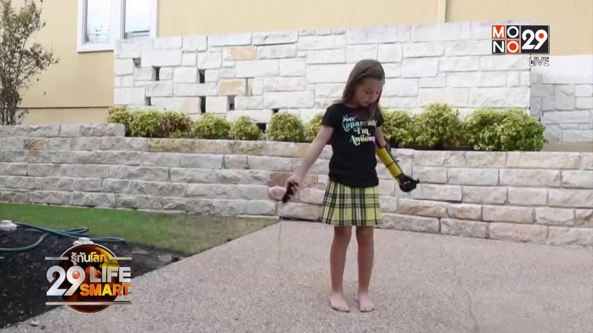 29 LifeSmart : GOOD HEALTH Hero Arm เปลี่ยนชีวิตเด็กหญิงชาวอเมริกัน