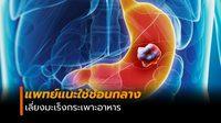 หมอเผยวิธีป้องกัน มะเร็งกระเพาะอาหาร ทำได้ง่ายด้วยการใช้ช้อนกลาง
