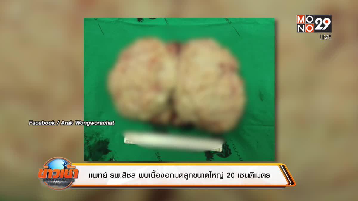 แพทย์ รพ.สิชล พบเนื้องอกมดลูกขนาดใหญ่ 20 เซนติเมตร