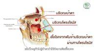 พาหาคำตอบ ทำไม ฟันผุ เสี่ยงติดเชื้อจนตาบอดได้?