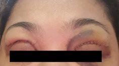 อ้างคนเย็บไม่ใช่หมอ!! สาวทำตา 2 ชั้น ตาข้างซ้ายแตก-เลือดออก กว่าจะหายเกือบ 2 เดือน