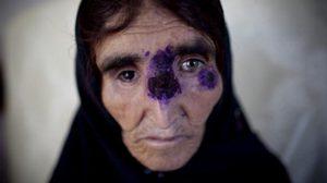 โรคกินเนื้อมนุษย์ ระบาดหนักในซีเรีย หลังกลุ่มไอเอสทิ้งศพเน่าทั่วเมือง