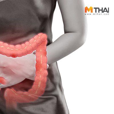 ปวดท้องเรื้อรัง ท้องเสียบ่อย ถ่ายปนเลือด ระวังเสี่ยง โรคลำไส้อักเสบเรื้อรัง!