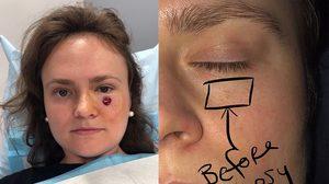 ช็อก!! สาวคนนี้พบว่า สิว บนใบหน้าของเธอ ความจริงมันคือ มะเร็งผิวหนัง