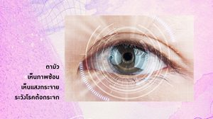 สาเหตุของโรคตาต้อกระจก วิธีดูแล การผ่าตัดรักษาต้อกระจก