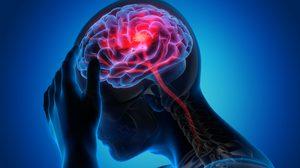 8 การป้องกันโรคหลอดเลือดสมอง ช่วยลดความเสี่ยงเกิดอัมพฤกษ์ อัมพาต!!
