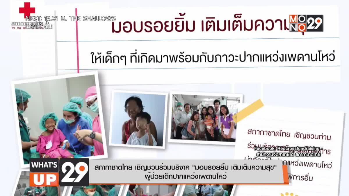 """สภากาชาดไทย เชิญชวนร่วมบริจาค """"มอบรอยยิ้ม เติมเต็มความสุข"""" ผู้ป่วยเด็กปากแหว่งเพดานโหว่"""