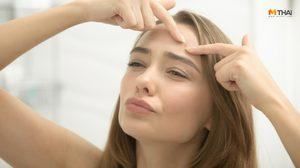 7 วิธีรักษาสิวอุดตัน ไม่ให้อักเสบ รับมือให้ถูก แล้วจะไม่กลับมาเป็นอีก