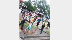 กู้ภัยสาวถูกกัดที่แขน ขณะเข้าจับตัวหญิงไม่สมประกอบทำร้ายตัวเอง