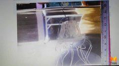 เตือน!! นักท่องเที่ยวระวัง 'แมงกะพรุนกล่อง' หลังพบที่อ่าวสิเกา