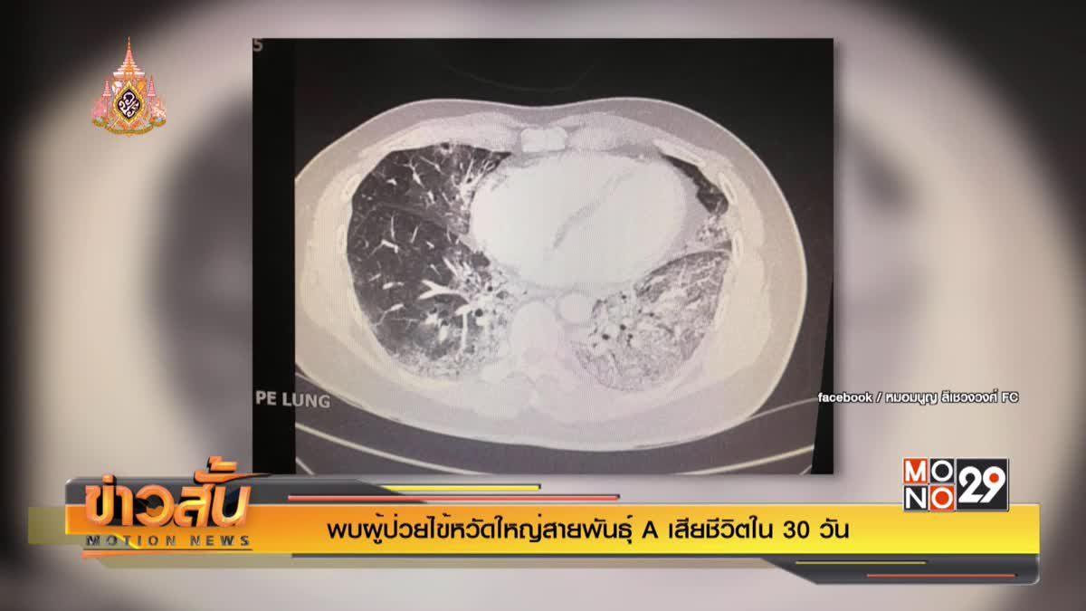 พบผู้ป่วยไข้หวัดใหญ่สายพันธุ์ A เสียชีวิตใน 30 วัน